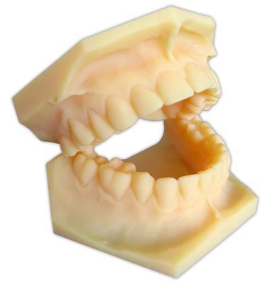 Modell Kieferpaar Polyjet Druck / Vero Dent